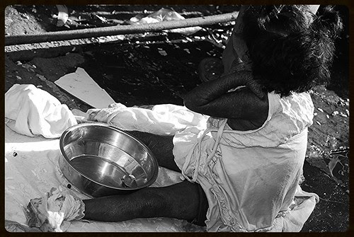 The Leper Child Banganga 2011 by firoze shakir photographerno1