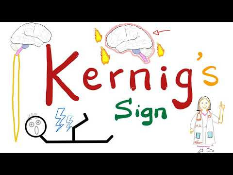Kernig Sign | Meningitis | Neurology Physical Exam