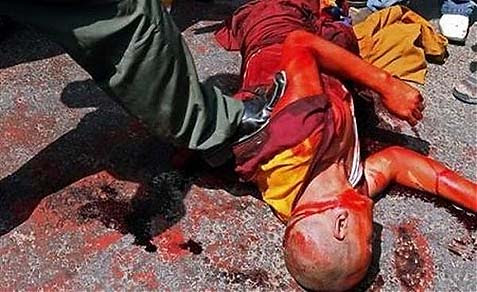 A brutalized Tibetan protester.