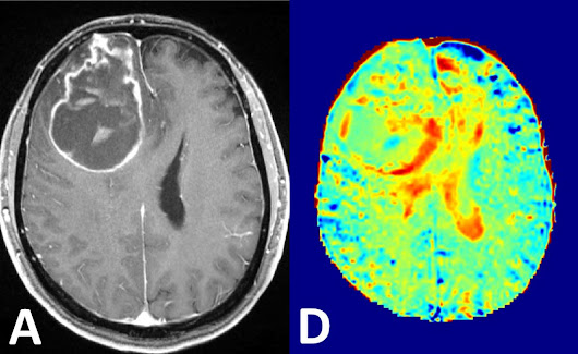 Sugar Could Replace Contrast Agents in Brain MRI Scans - General Imaging - MedImaging.net
