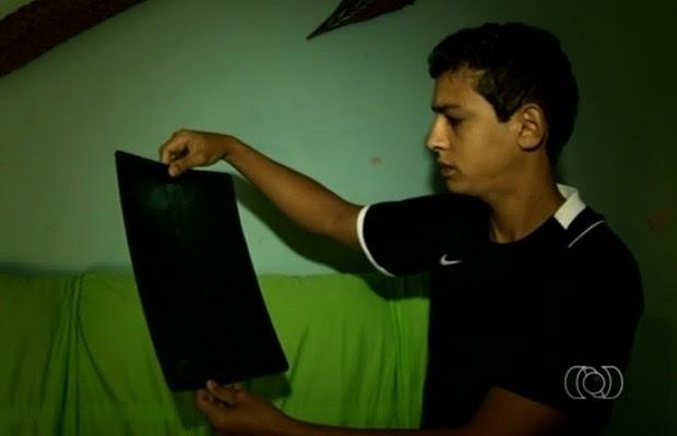 Uaistein Rodrigues teve o benefício do INSS cancelado em Goiânia, Goiás (Foto: Reprodução/TV Anhanguera)