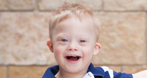 Dad Responds to Hurtful Observation About His Son With Down Syndrome