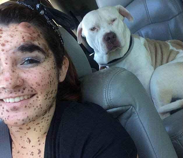 Ciera aprendeu a se aceitar como é, superando o bullying. (Foto: Reprodução/Instagram)