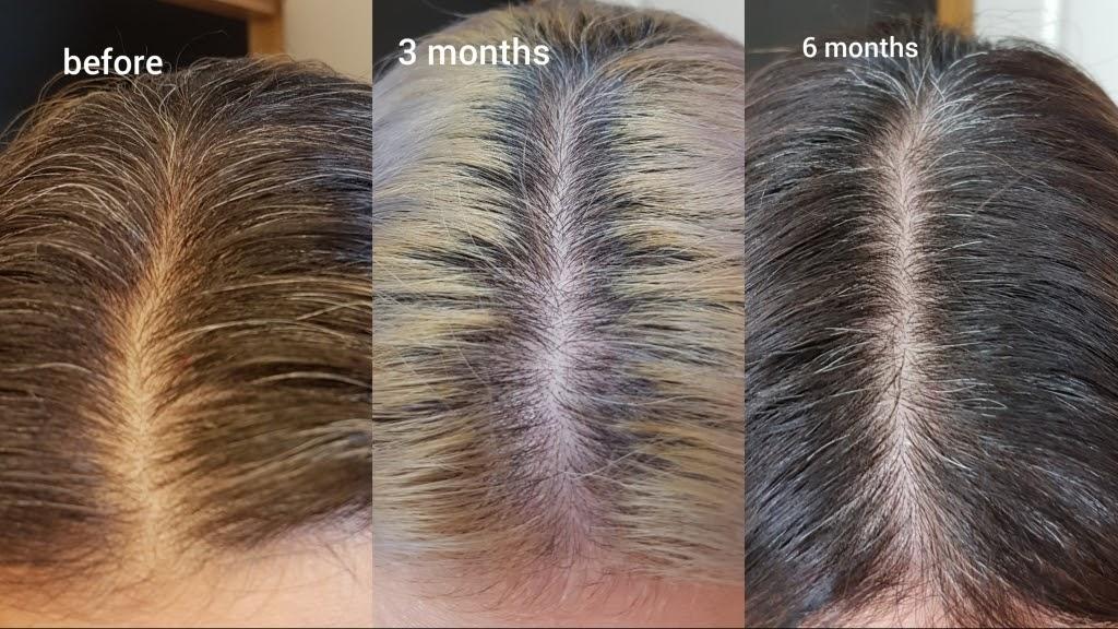 The Ordinary Multi Peptide Serum For Hair Density Eyebrows Eyebrowshaper