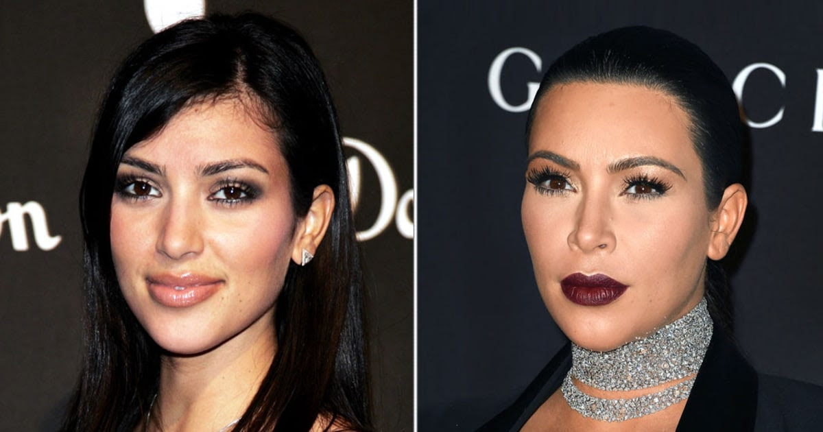 Kim Kardashian Lasered Her Hairy Neck, Forehead: Before, After Pics  Us Weekly
