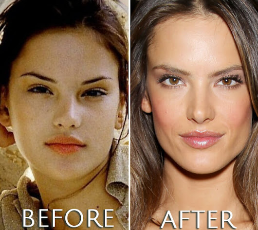 Alessandra Ambrosio Plastic Surgery Before & After Photos