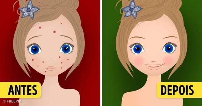 Duas maneiras sensacionais para eliminar manchas na pele