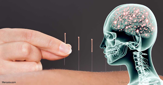 Acupuncture's Ability to Reduce Pain