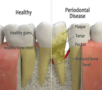 7 New Tips to Prevent Gum Disease