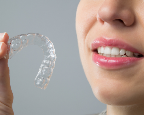 Invisalign – Your Smile in 3D
