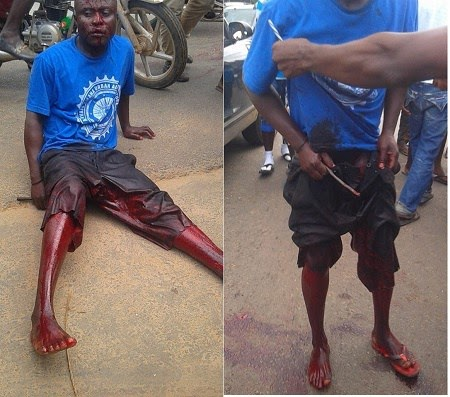 Man In Deep Pains After His Penis Was Cut in Broad Day For Doing This  ****GRAPHIC PHOTOS****