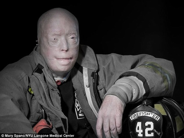 Prior to his transplant (pictured), Hardison had undergone 71 operations aimed at saving his eyesight, and re-creating his nose and lips