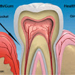 Signs you may be at risk for gum disease