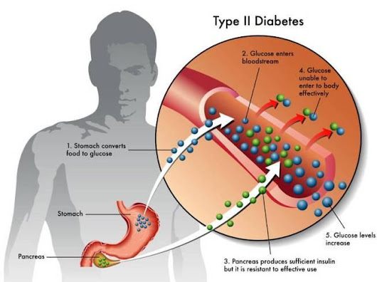 7 Warning Signs of Type 2 Diabetes You Shouldn't Ignore