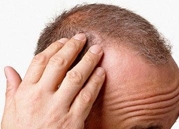 infiammazione cuoio capelluto rimedi - Come alleviare l