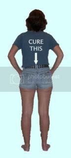 Picture of ABFH's backside in short shorts, with a T-shirt that says CURE THIS and an arrow pointing down.