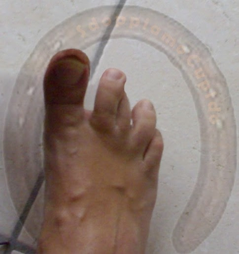 dita piedi incrociate, crossed fingers foot, sdoppiamocupido