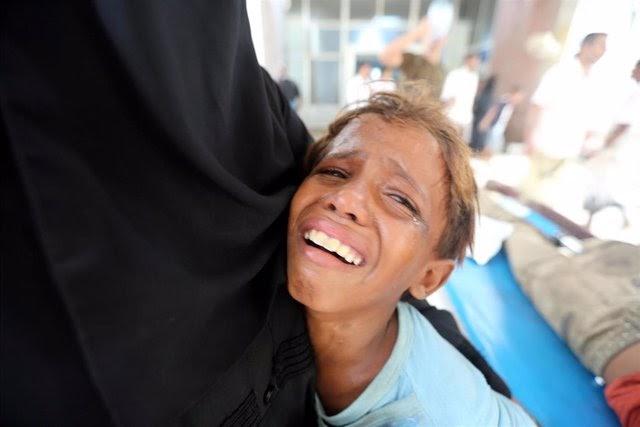 Los bombardeos de Arabia Saudita dejan más de 91.000 muertos en Yemen