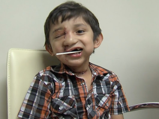Kevin Vicente update: Valley boy mauled by dog gets new lease on life