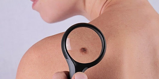 5 Skin Cancer Warning Signs That Are Easy To Overlook | Prevention