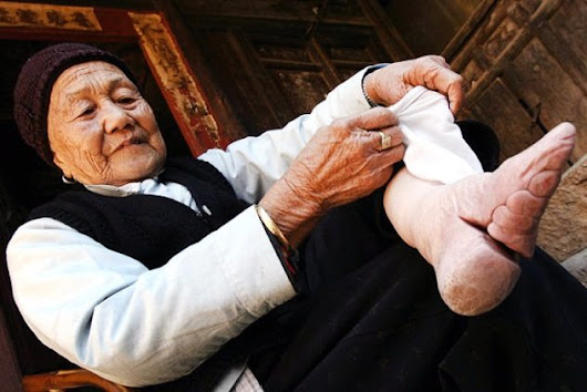 Women's Feet Were Broken And Crushed Daily To Make Them Look More Attractive