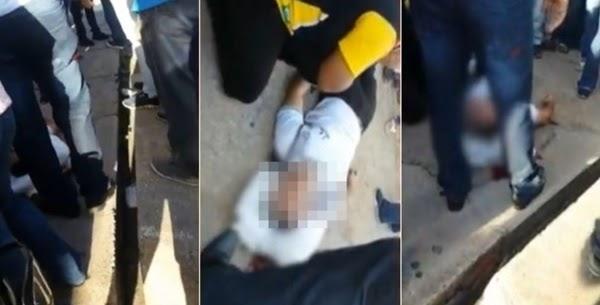 CASO DE POLÍCIA - Estudante caxiense é baleado na cabeça em rua no Centro de Teresina