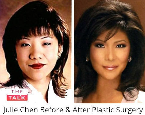 The Myth of Westernization: Here's the Real Truth About Asian Plastic Surgery