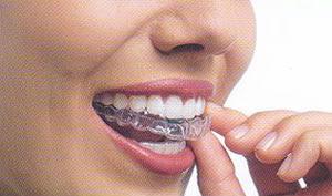 invisalign - aparelhos dentarios transparentes