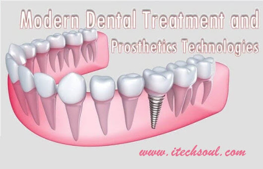 Modern Dental Treatment and Prosthetics Technologies - Itechsoul