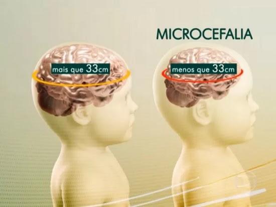 microcefaleia