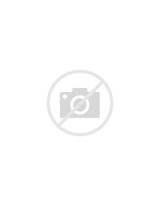 Calf Injury Images