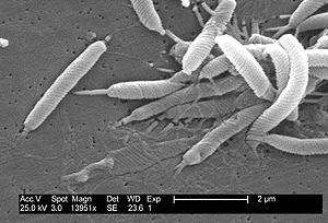 Scanning electron micrograph of Helicobacter b...