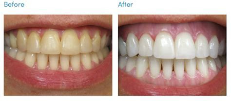 Teeth Whitening Cosmetic Dentistry Los Angeles   South Bay