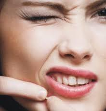 Dr bindu acne scars ccuart Gallery