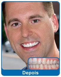 antes-e-depois-aparelho-dentario-6