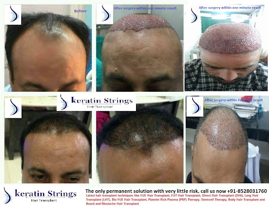 Hair Transplant- Separating facts from myths