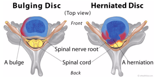 What You Need to Know about Arthritis and Spinal Disc Issues