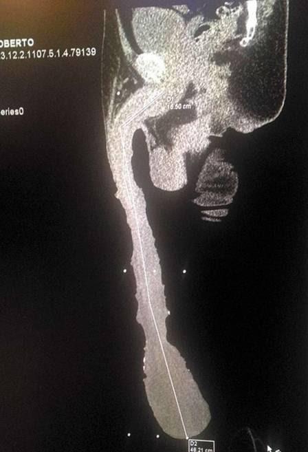 Tomografia 3D mostra o tamanho do pênis do mexicano