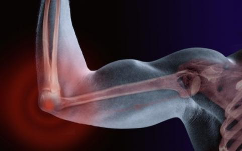 Most Common Sports Injuries: Tennis Elbow/Elbow Pain