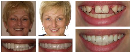 Contemporary Implantology, Inc – Dental Implants Houston – (713) 464-2792 » Dental Patient Forms Houston