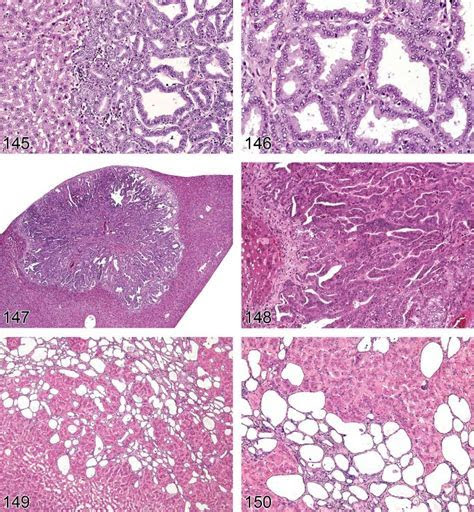 Proliferative and Nonproliferative Lesions of the Rat and Mouse Hepatobiliary System