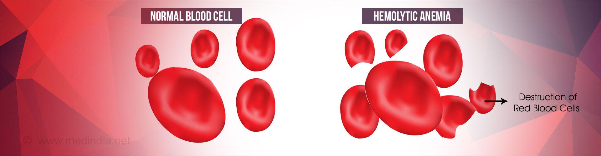 Image result for  Destruction Of Red Blood Cells