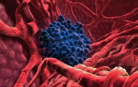 Células tumorales en un hígado humano.   El Mundo