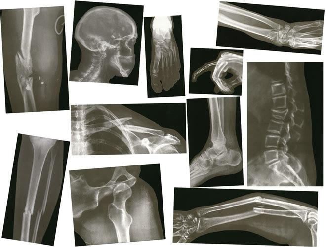 Biology/Life Science - Broken Bones X-Rays