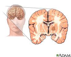 Ilustración de un tumor cerebral