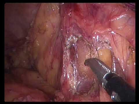 Laparoscopic left colectomy for colovaginal fistula