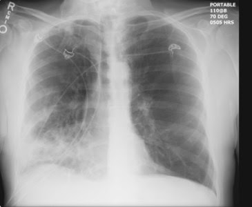 Right Lower Lobe Pneumonia Chest X Ray