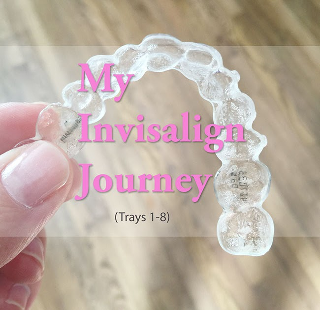 Curly Crafty Mom: My Invisalign Journey (Trays 1-8) and ...