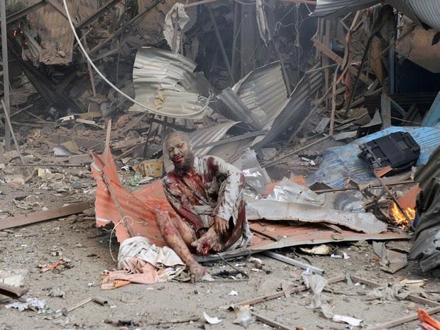 Homem ferido após explosão de bomba no Paquistão. (Foto: Hasham Ahmed/AFP)
