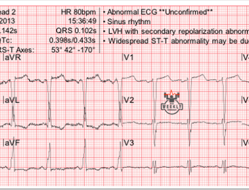 Amal Mattu's ECG Case of the Week – July 24, 2017